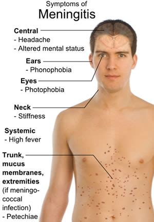 Research paper bacterial meningitis treatment